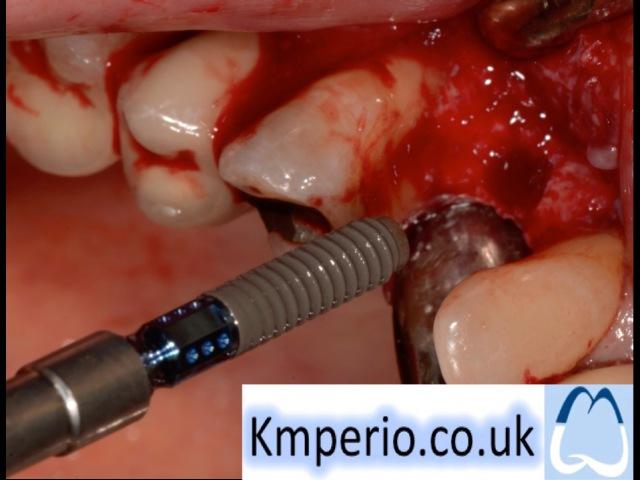 Straumann-Dental Implant Surgery-Step by Step- Part 1.