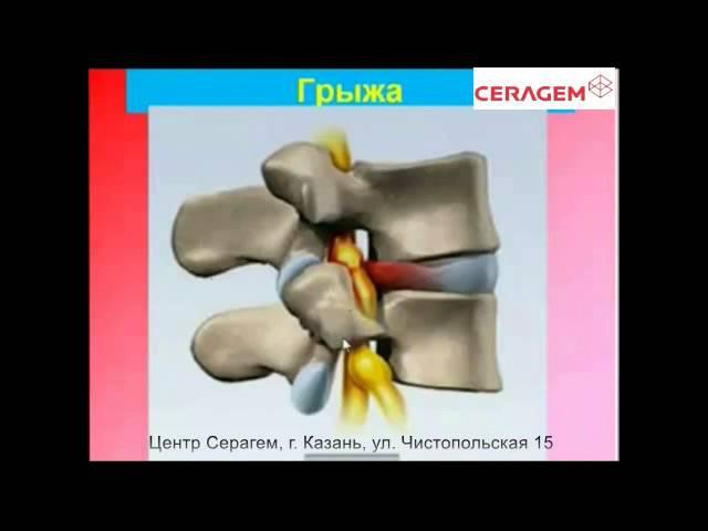 Хорошая лекция об остеохондрозе врача Клиники Управделами Президента РФ Тетюка В.