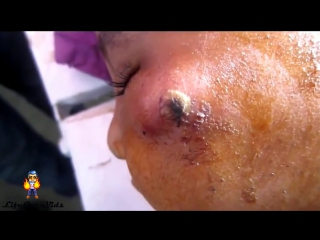 Whitehead, pimples, blackhead, acne extraction part 9
