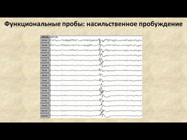 ЭЭГ при эпилепсии (EEG in epileptic patients)