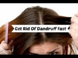 Home Remedies for Dandruff Get Rid of Dandruff Fast Naturally Permanently