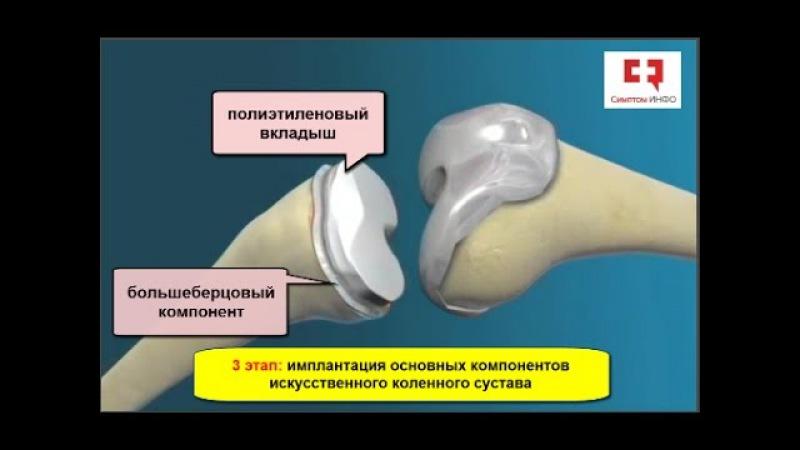 Эндопротезирование коленного сустава основные принципы и этапы операции по замене коленного сустава