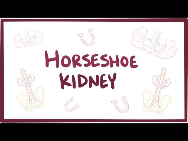 Horseshoe kidney (renal fusion) - causes, symptoms, diagnosis, treatment pathology