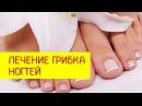 Лечение грибка ногтей. Эффективное лечение грибка ногтей [Галина Гроссманн]