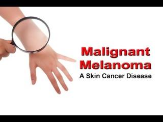 Malignant Melanoma – Final Stage of Skin Cancer
