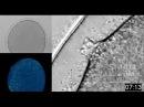 Оплодотворение яйцеклетки под микроскопом