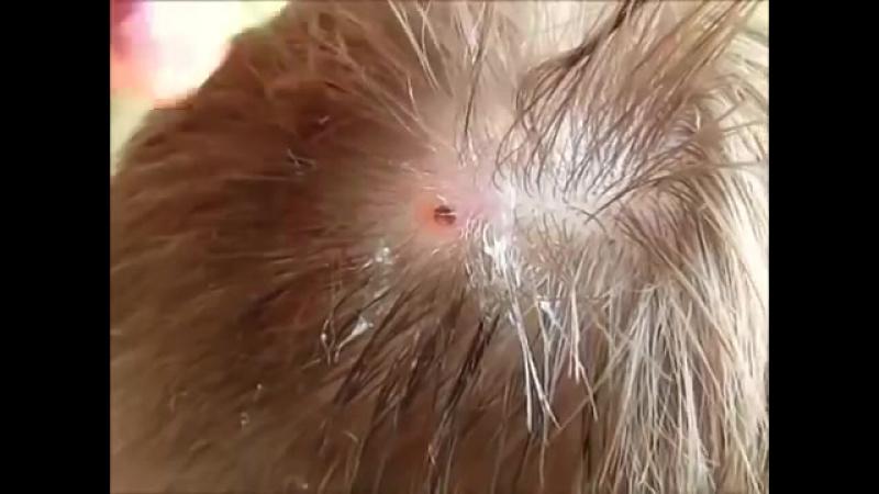 Удаление личинки овода из головы.
