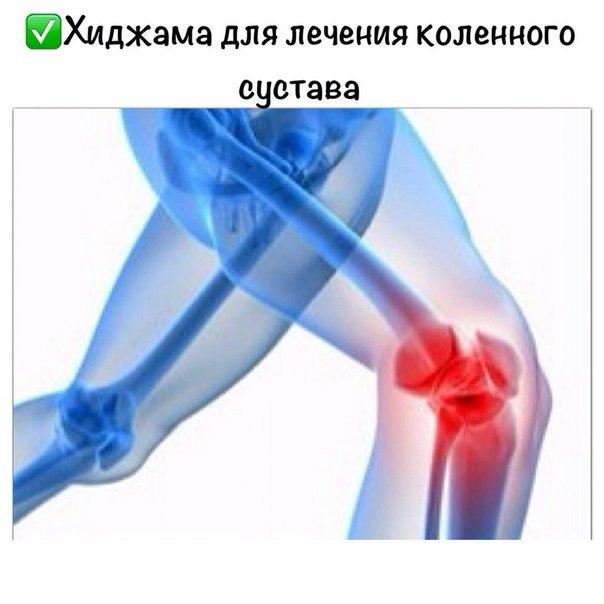 analgetiki-pri-artrozah