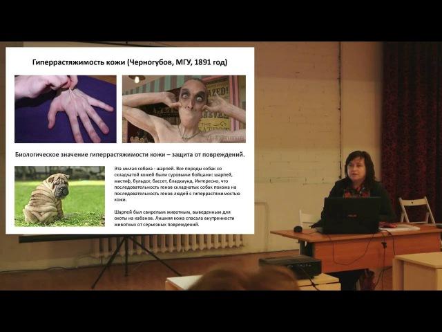 Лекция на тему Дисплазия соединительной ткани