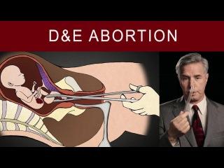Он провел 1200 абортов. И показал, как это выглядит на самом деле