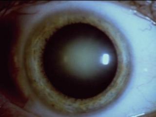 BBC: Тело человека (6) Проходят годы / The Human Body (Кристофер Спенсер / Christopher Spencer)