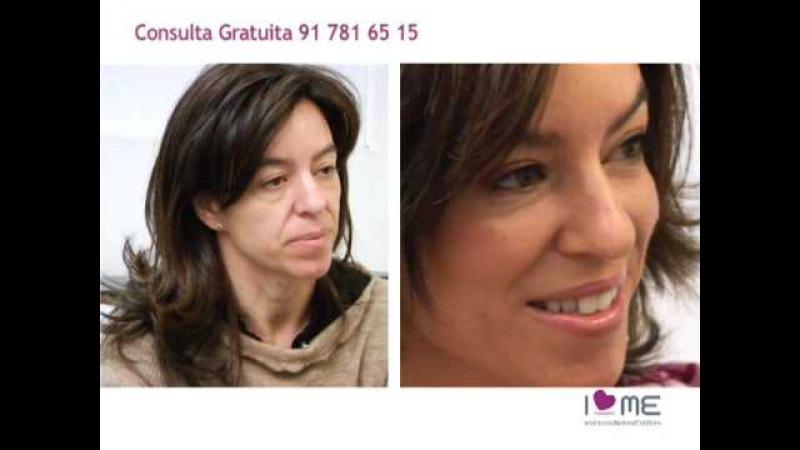 El Antes/Después de Un Rejuvenecimiento Facial Sin Cirugía Estética