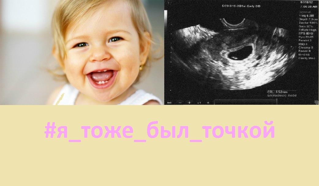 https://pp.vk.me/c626325/v626325111/4b560/MhU4iQSpmkQ.jpg