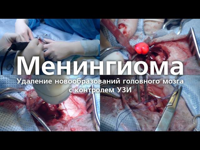 Менингиома Удаление новообразований головного мозга с контролем УЗИ