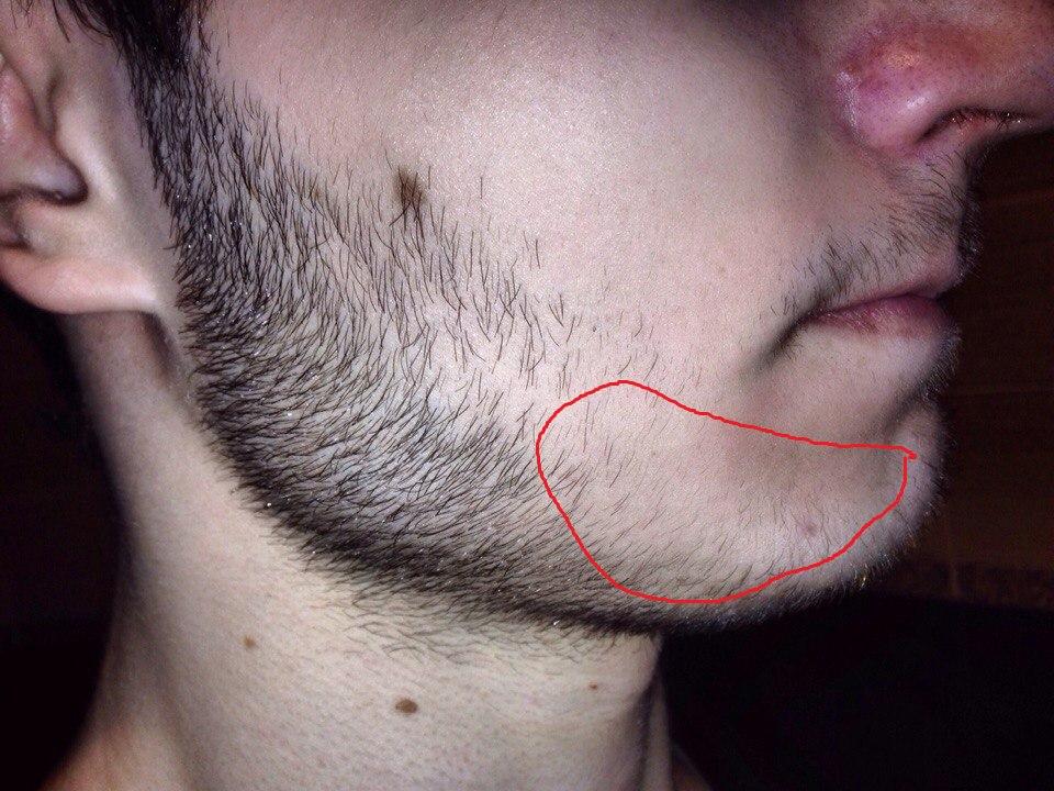 20 y/o  Second journey [4 weeks] - Beard Board