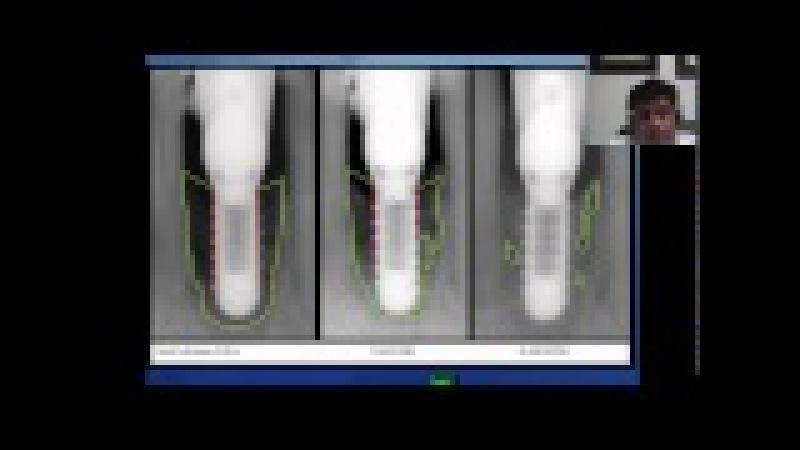 LAPIP Dental implant failure peri implantitis laser procedure