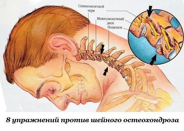 Причины боли в шеи и позвоночнике