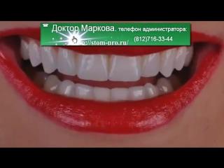 stom-pro.ruV