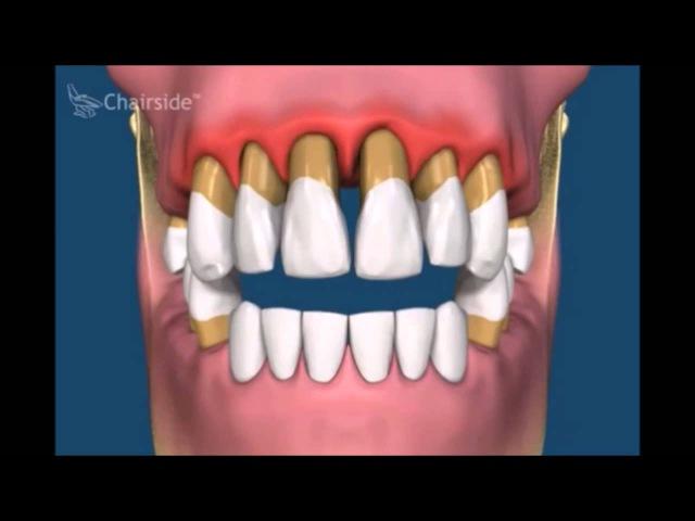 Протезирование зубов Современное протезирование зубов