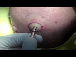 Biggest 2 Cyst on Head Popped |☻ Cyst on Head Popped Video