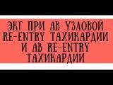 ЭКГ при АВ узловой реципрокной re-entry тахикардии (АВРТ, АВУРТ) - meduniver.com