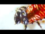 КЛЕТКИ КРОВИ В ГЛАЗУ ЧЕЛОВЕКА! - [под микроскопом]