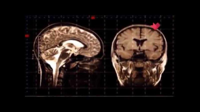 Раскрывая мистические тайны: мозг