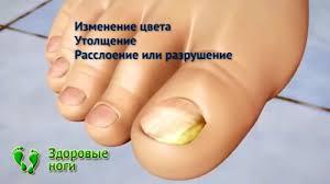 признаки появления паразитов в организме человека