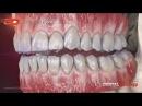 Dentalstrategy - 3D Dental Animation