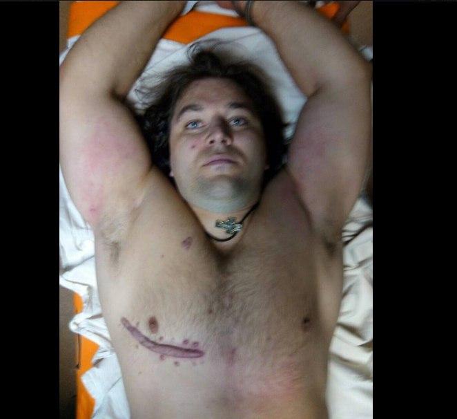 """Убийца патрульных в Днепре сам пришел в больницу с огнестрельным ранением, - """"056.ua"""" - Цензор.НЕТ 5082"""