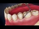 Механическая чистка зубов от налета