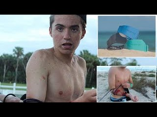 Teen Surfer Survives Shark Attack Despite Wearing Band Meant To Repel Them