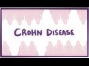 Crohn's disease (Crohn disease) - causes, symptoms pathology