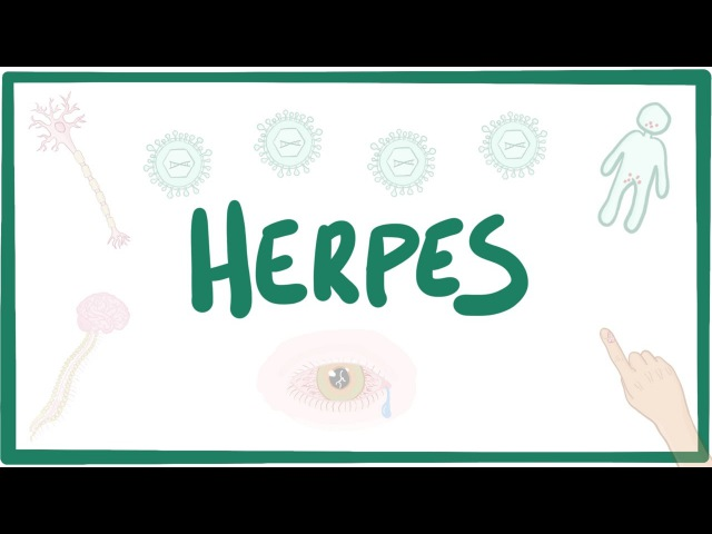 Herpes (oral genital) - causes, symptoms, diagnosis, treatment, pathology