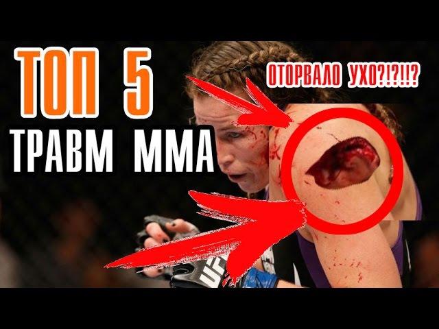 TOP ТРАВМ В ММА   ОТОРВАННОЕ УХО   K1ND   MMA   UFC  