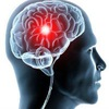 Инсульт и травма мозга