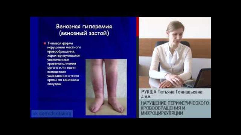 5 Нарушение периферического кровообращения и микроциркуляции