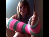 girls in leg cast