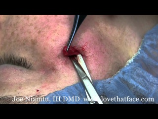 Cosmetic Removal Of Sebaceous Cyst on the Face