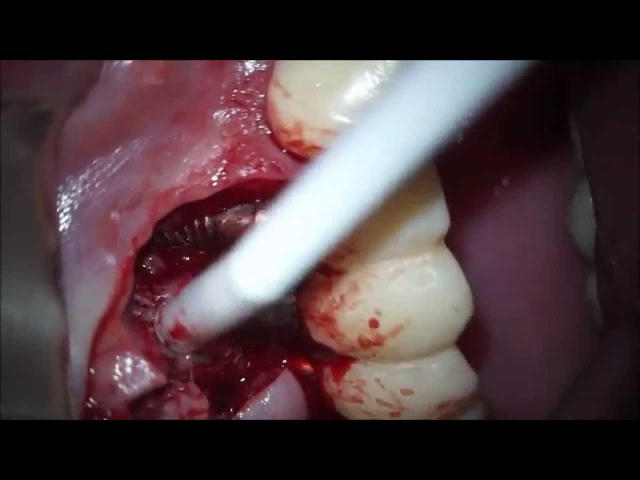 Surgical case Peri Implantitis 11-13 by microscope