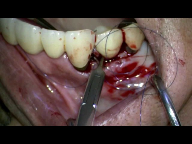 Peri-implantitis open flap surgery with ErYAG laser, Straumann TL implant
