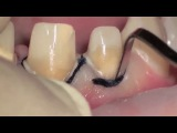 Tooth preparation under microscope, root canal treatment step by step