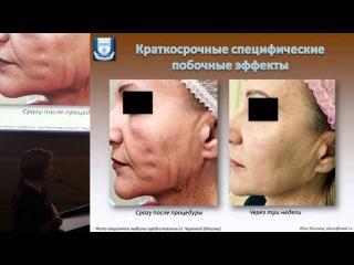 Осложнения нитевых технологий в косметологии – профилактика и лечение