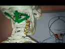 Головокружение Боль в затылке Позвоночная артерия Короткие разгибатели шеи