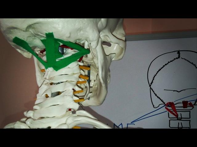 Головокружение. Боль в затылке. Позвоночная артерия. Короткие разгибатели шеи