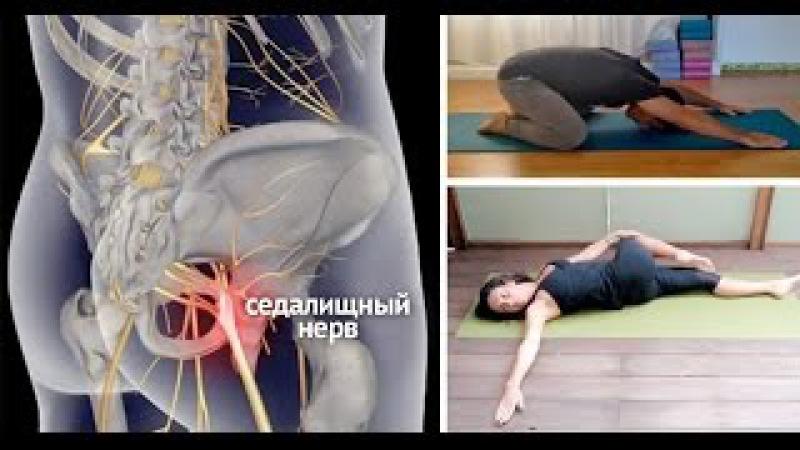 Остеохондроз защемление нерва лечение