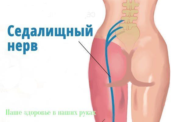 Лечение поясничного остеохондроза в домашних условиях уколами