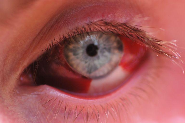травма глаза восстановление