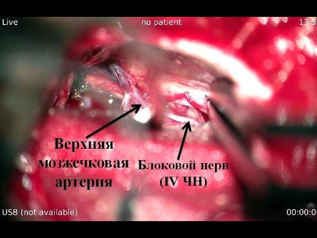 Удаление большой петрокливальной менингиомы часть 2