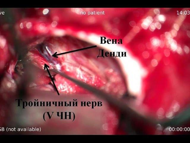 Удаление большой петрокливальной менингиомы часть 3